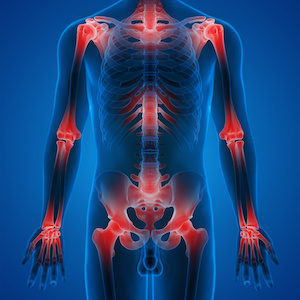 inflammation in the human body
